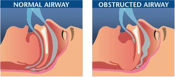 normal and obstructed airways - sleep apnea