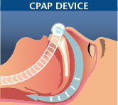 airway with cpap device - sleep apnea